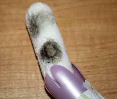 moldy-tampon